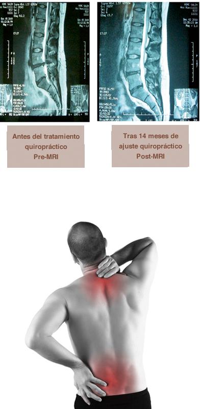 El tirante al dolor en la espalda y los riñones